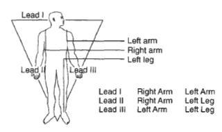 Construa seu Próprio Monitor Cardíaco, um ECG simples